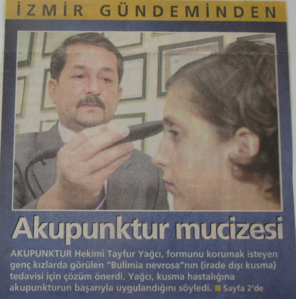 Akupunktur Mucizesi